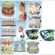 Matériel de l'éducation en sciences orales Modèle de remplissage du canal racinaire Modèle modèle des dents dentaires