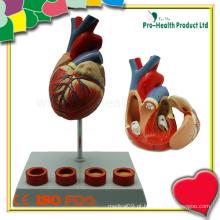 Atherosclerosis Modelo de Coração Humano Plástico