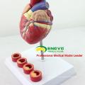 HEART05 (12481) Anatomía del corazón humano de tamaño natural en 2 partes con sección transversal de trombosis de 4 piezas, Modelos de anatomía> Modelos de corazón