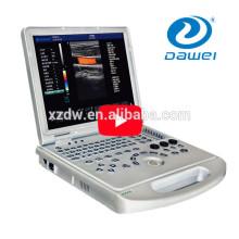 Negócio portátil do doppler da cor do varredor do ultra-som de Doppler no Paquistão DW-C60 MAIS