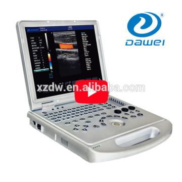 color portable ultrasound scanner&portable echography DW-C60 plus