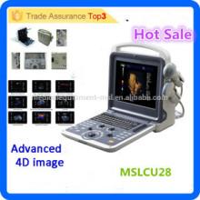 MSLCU28i Neue Art u. Technologie 3D 4D Farben-Doppler-Ultraschall-Scanner-bewegliche Ultraschallmaschine mit preiswertem Preis