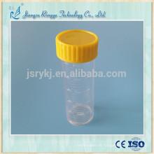 25ml PS transparente medizinische Urinbecher Urinflasche