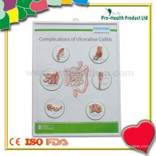 Patient Plastik Medizinische Wand Diagramm