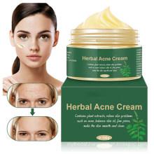 OEM Custom Herbal Acne Scar Removal Brightening Cream