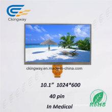 RoHS Backlight LCD Indústria Aprovado Personalizar Tamanho Sensor de tela de exibição