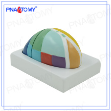 PNT-0621 Enlarged Thalamus model brain model