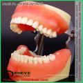 VERKAUFEN Sie 12608 Lehrpraxis Modell der Oralchirurgie