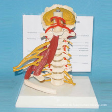 Menschliche natürliche Halswirbelsäule Modell mit Muskel und Nerv