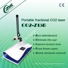 Cicatriz Fracionária do laser do CO2 remove a máquina