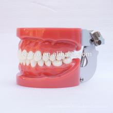 Modelos de dientes dentales estándar con 28 dientes removibles fijos por cera 13001