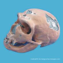 Der Neandertaler menschlichen Kopf Schädel Skelett Modell für medizinische Lehre (R020608)