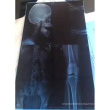 Nuevo CT / CR / DR CNJ-PM-B-210 Película médica de PVC transparente azul Impresión de una cara