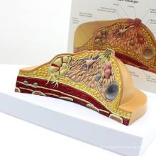ANATOMIA23 (12461) Modelo de secção transversal de mama feminina com patologias comuns, 1 parte, modelos de anatomia> modelo feminino