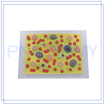 PNT-0421 blood cell model