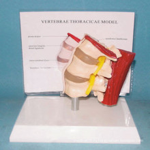 Медицинская модель анатомии мышц поясничной мышцы (R040109)