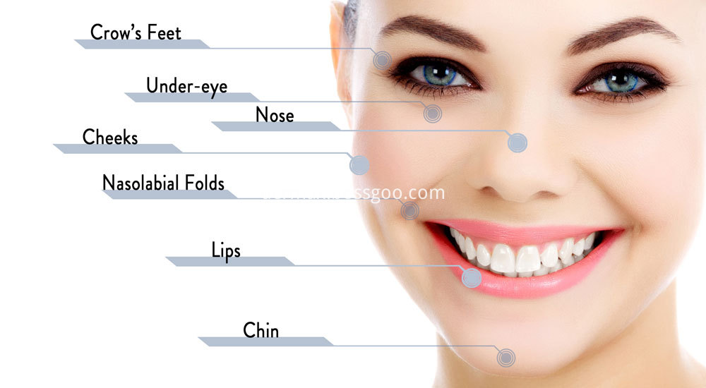 Cosmetic Hyaluronic Acid Filler