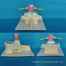 Modelo de Esqueleto de Anatomia da Vertebra Espinhal Humana para Ensinar (R140102)