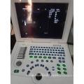 preço da máquina de ultra-som e máquina de ultra-som para a gravidez
