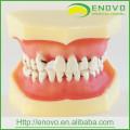 АН-Л4 Peridontal болезни зубов модель со съемным мягким десен
