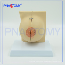 PNT-0747 life size female breast anatomical model
