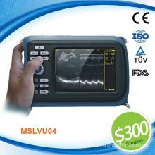 Coupon disponible! MSLVU04N Prix de la machine à ultrasons bovins, bovins, porcins et moutons