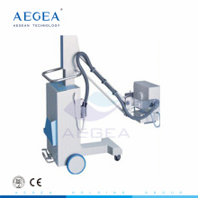 AG-D0022 Mobile 1.5mm fixed anode focus medical diagnosis image high frequency digital x ray machine price