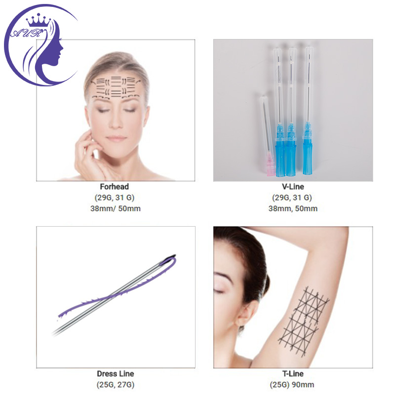 Non Surgical Thread Lift