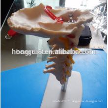 VENTE CHAÎNE Colonne cervicale avec artère du cou, os osseux occipital, modèle de nerf de disque, plastique cervical cervical