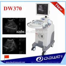 equipo de ultrasonido para embarazo y ecografía DW370