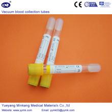 Tubes de collecte de sang à vide Sst Tube (ENK-CXG-024)