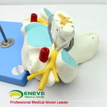 VERTEBRA09 (12393) Medical Science Vértebras cervicales con médula espinal (modelo médico, modelo anatómico)