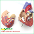 HEART03(12479) Full Life-size Human Adult Heart Anatomy Model, 2 Parts, Anatomy Models > Heart Models