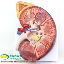 KIDNEY02 (12431) Riñón de plástico de gran tamaño con soporte 3 Tiempo Ampliar Tamaño de la vida Anatomía médica
