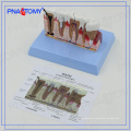PNT-0528ad educational Osteoporosis Diseased Dental Teeth Model