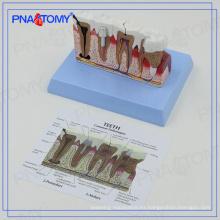 PNT-0528ad Osteoporosis educativa modelo de dientes dentales enfermos
