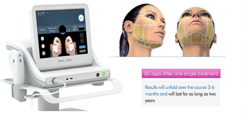 High Intensity Focused Ultrasound Hifu for Face Skin Lifting and Wrinkle Removal