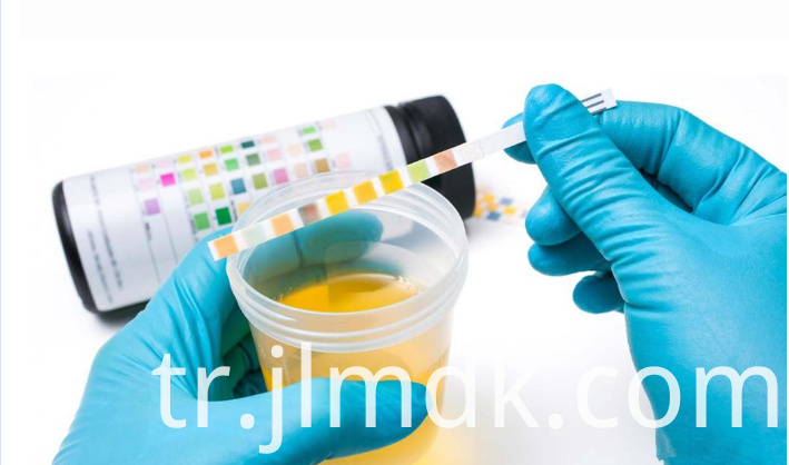How to test urine strips