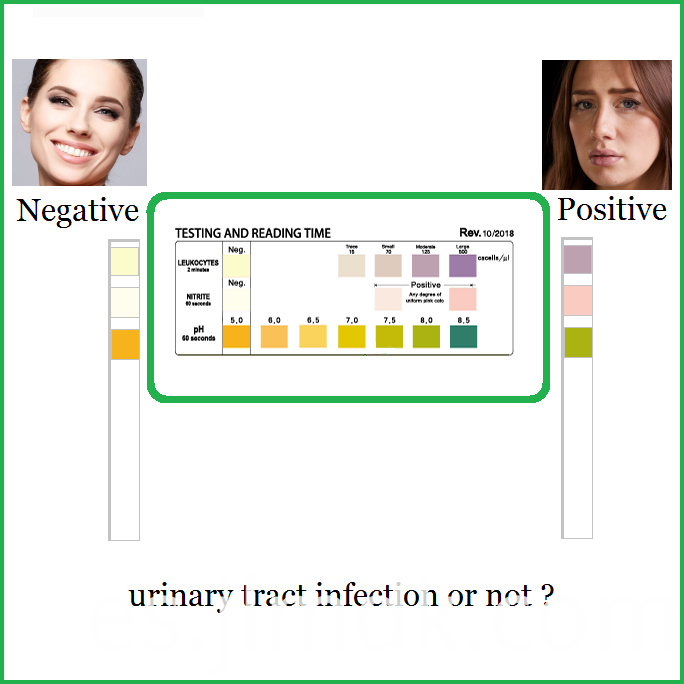 Glucose Test Strips URS-2P