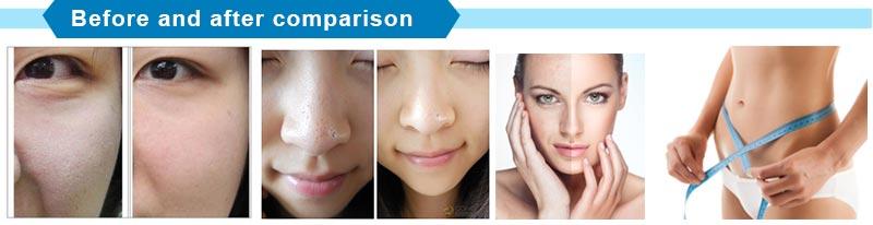 5 Treatment Heads RF Radio Frequency Skin Care Lifting Machine