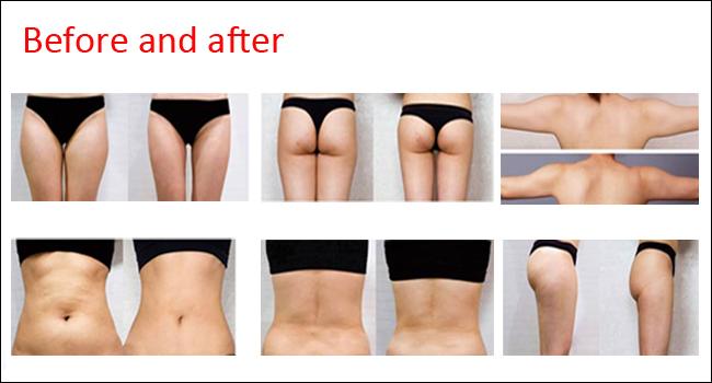Skin Tightening Body Slimming Machine Cavitation+Tripolar RF+Lipolaser