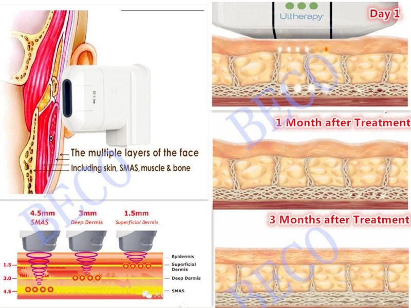 Beco Portable Hifu Face Lift Machine Hifu for Face Lift (FU4.5-10S)