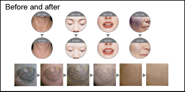 IPL Hair Removal Skin Rejuvenation Beauty Machine