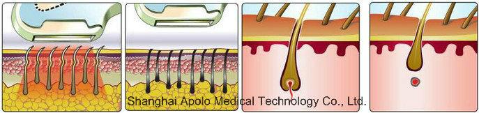 Painless IPL Hair Removal in-Motion Shr IPL Beauty Equipment