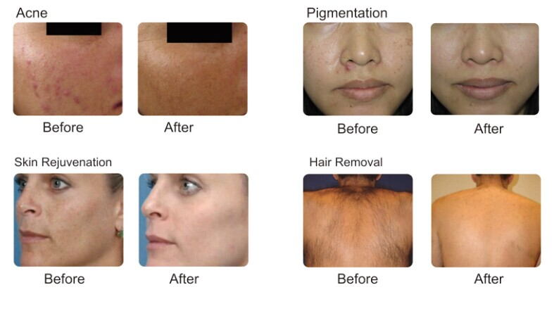 Multi-Spot Optional Spot Removal Freckle Removalshr IPL Laser Hair Removal Machine