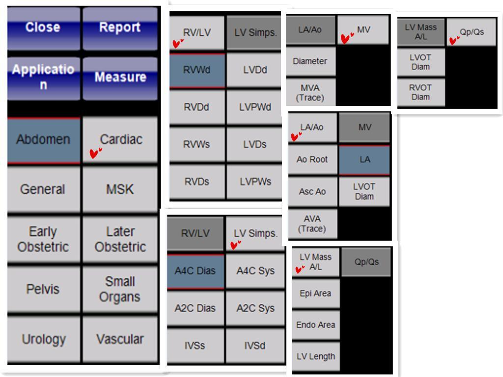 Hospital Supplier 4D Color Doppler Cardiac Gynecology Ultrasound Ultrasonography (YJ-U800Tplus)