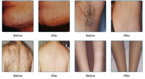 Affordable Diode Laser Hair Removal with Medical Ce, Tga&FDA