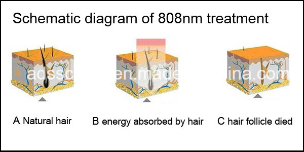 Lightsheer Diode Laser Permanent Hair Removal