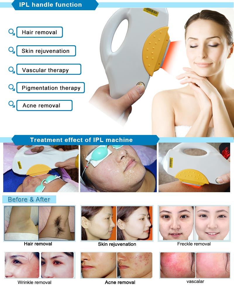 Beauty Salon ND YAG Laser + IPL Acne Removal Machine