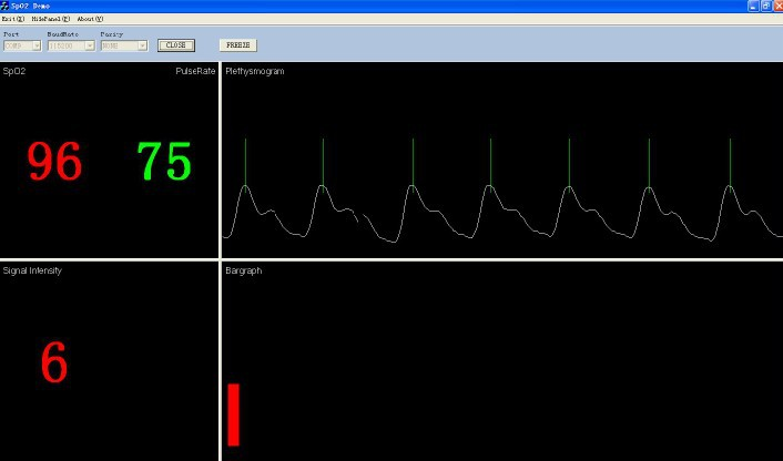 Multi-Parameters Patient Monitor (PM6750)
